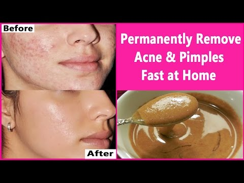 In 3 DAYS- Permanently Remove Acne & Pimples Fast at Home | Overnight Acne & Pimples Treatment