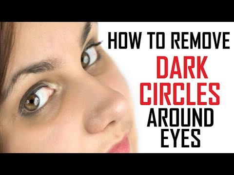 12 Best Remedies To Remove Dark Circles Under Eyes Naturally At Home