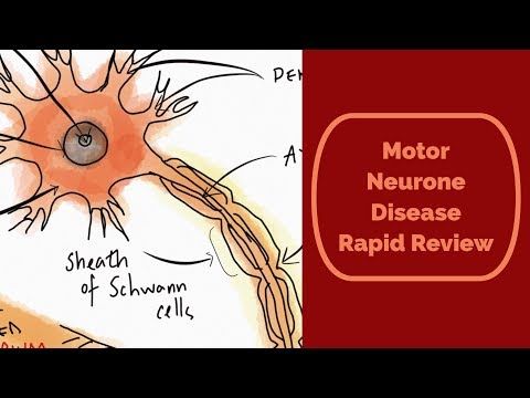 Motor Neurone Disease (aka ALS/Lou Gehrig's disease) rapid review