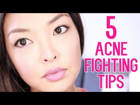 HOW TO: Get Rid of Acne Scars & Pimples!