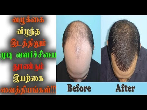 Easy way to get new hair in bald head|Tamil News|