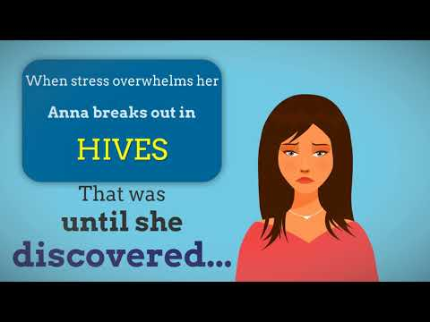 Stress Hives Treatment | How To Get Rid Of Stress Hives Fast