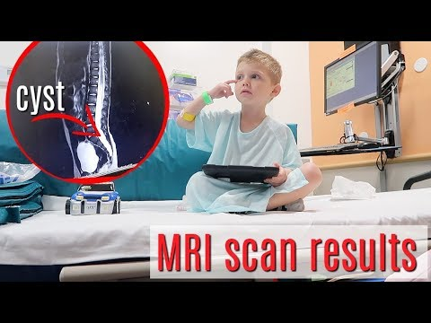 MRI RESULTS - doctor's prediction