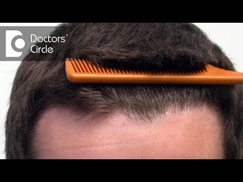 Treatment options to increase hair density - Dr. Rasya Dixit