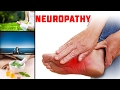 7 Powerful Natural Remedies for Peripheral Neuropathy-How To Treat Neuropathy