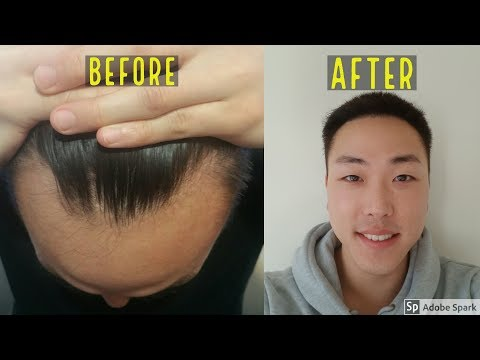 1 YEAR BEFORE & AFTER HAIR TRANSPLANT RESULT! DAY 0 TO DAY 365!