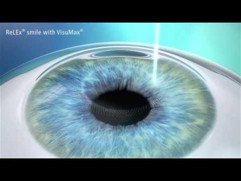SMILE laser eye surgery | Vision Eye Institute
