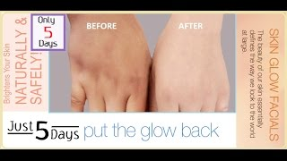 Skin Lighten Face And Body And Get Clear Glowing Spotless Skin Color
