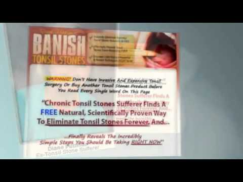 How to cure bad breath! A Fast Tonsil Stones Removal Treatment