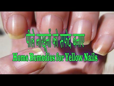 पीले नाखूनों को सफेद कैसे बनाए   Home remedies to turn yellow Nails into White nails