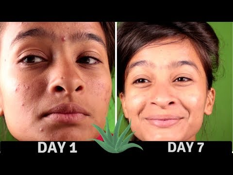 7 Days Experiment With Aloe Vera On Acne