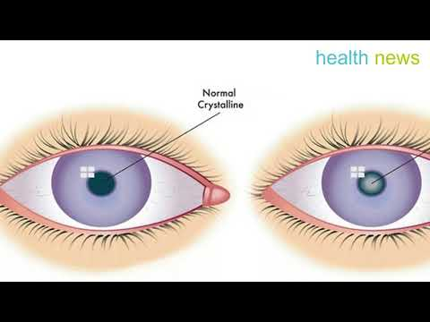 How to Remove a Cataract and Get 20⁄20 Vision with Castor Oil
