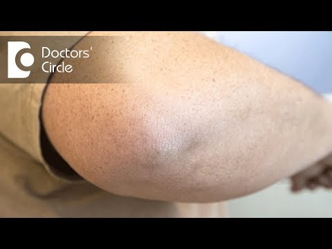 What causes pimple like spots above the elbow? - Dr. Rajdeep Mysore