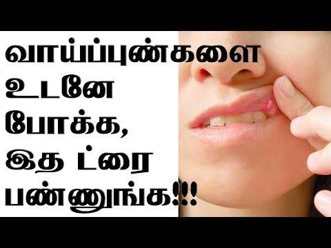 வாய்ப்புண்களை உடனே போக்க, இத ட்ரை பண்ணுங்க!!! Home Remedies for Mouth Ulcers