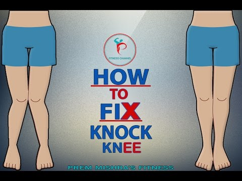 HOW TO FIX PROBLEM OF KNOCK KNEE IN HINDI -PREM MISHRA