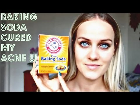 BAKING SODA CURED MY ACNE in 10 days!!! Experiment WORKED !