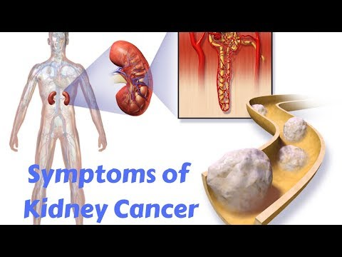 The Most Common Symptoms of Kidney Cancer