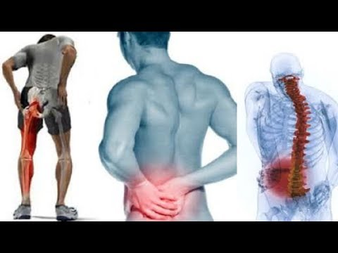 Guide on HOW TO RELIEVE SCIATICA PAIN AT HOME Naturally