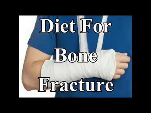 Best Bone Fracture Diet in Hindi
