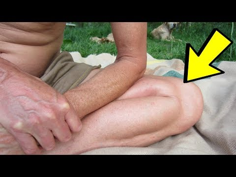 Inner Knee Pain Treatment that Actually WORKS!