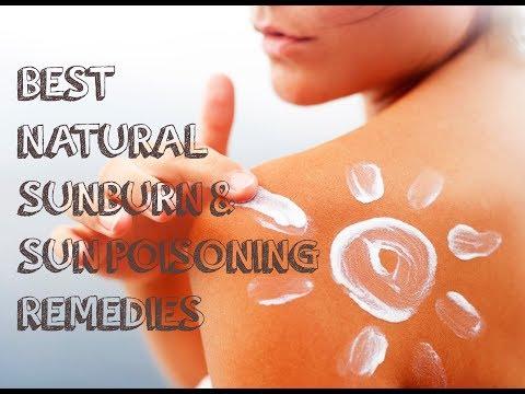 Best Natural Sunburn &  Sun Poisoning Cures. Get Fast Relief.
