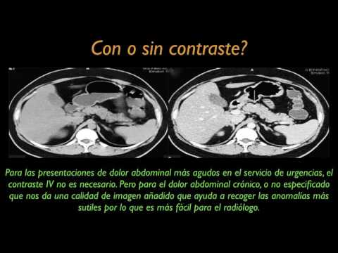 Dolor abdominal - ESPANOL - Educación al Paciente