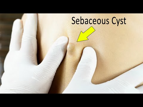 13 Natural Home Remedies For Sebaceous Cyst