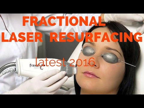 Fractional laser resurfacing- dermatologist review