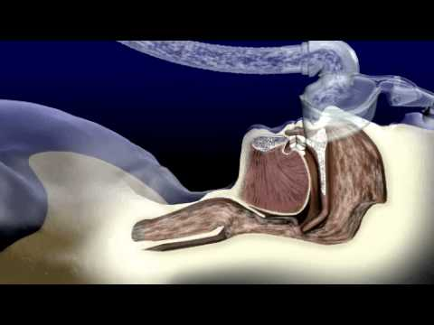 How does CPAP work