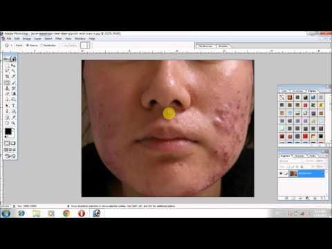 How remove acne pimple photoshop 7.0 hindi