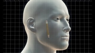 Man had pencil stuck in his head for 15 years