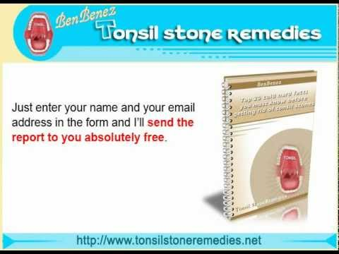 Top 20 Cold Hard Facts You Must Know Before Getting Rid Of Tonsil Stones Free E-report