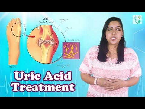 Uric Acid Symptoms,Causes And Treatment | How To Decrease Uric Acid