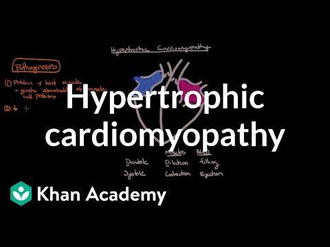 Hypertrophic cardiomyopathy: Pathophysiology and diagnosis | NCLEX-RN | Khan Academy