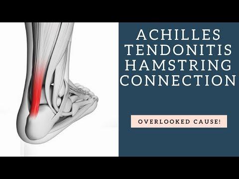 BEWARE How Achilles Tendonitis Can Be Caused By Weak Hamstrings!