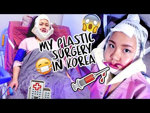 MY PLASTIC SURGERY IN KOREA |  V-Line Surgery, Nose Job + Lip Filler Consultation
