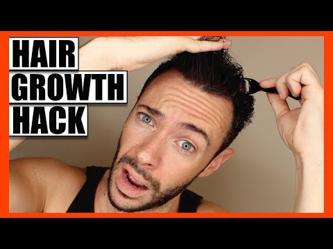 How To REGROW THINNING HAIR & FILL BALD SPOTS | Hair Growth Hack: Does It Really Work?