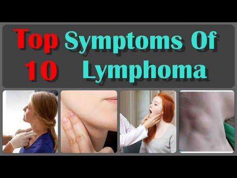 Top 10 Symptoms Of Lymphoma Which is Ignored By Men And Women