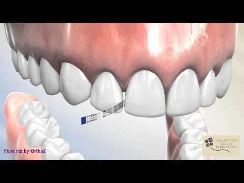 Diamond Strip for Interproximal Reduction - Wellington Village Orthodontics