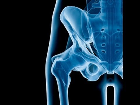 Top 3 Strengthening Exercises Of A Weak Hip