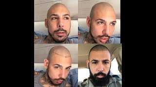 4 Month Update Minoxidil Beard and hair loss