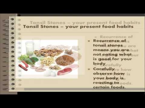 Tonsil stones removal - Natural tonsil stones home remedy