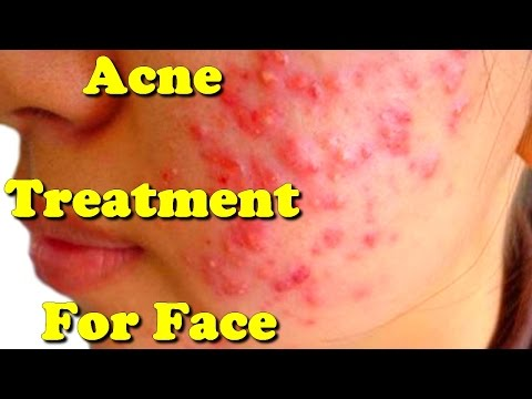 acne treatment for face