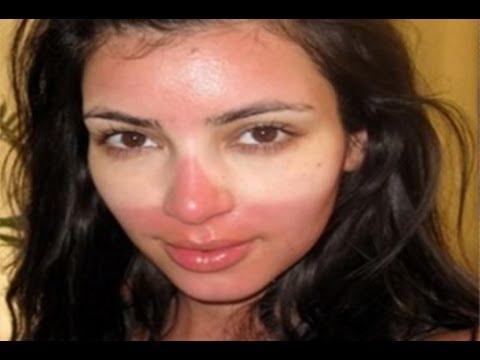 How to Repair Sun Damaged Skin Naturally - Fast Sun Damaged Skin Repair