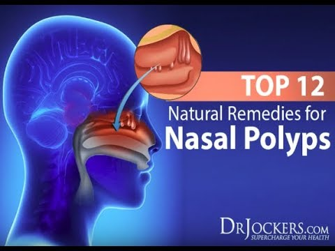 Top 12 Natural Remedies for Nasal Polyps