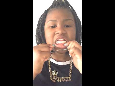 How to put rubber bands on your teeth without braces