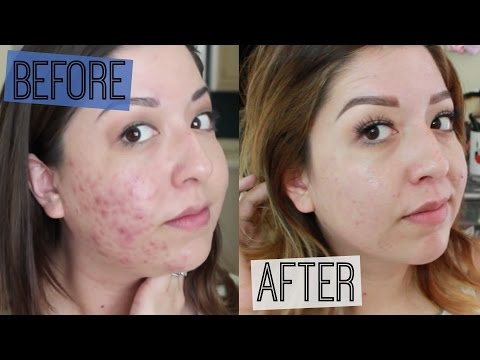 How I Cured My Acne!