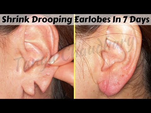 How To Shrink Drooping Earlobes In Just 7 Days | Home Remedies To Treat Torn & Drooping Earlobes