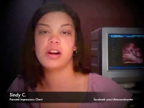 A testimonial for 3D/4D Ultrasound Center of Orlando from Sindy C.