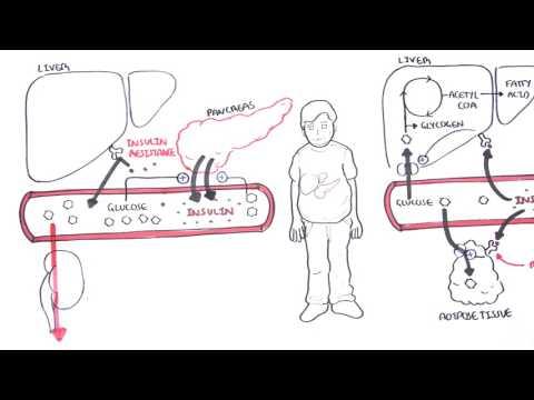 Diabetes Type II Pathophysiology